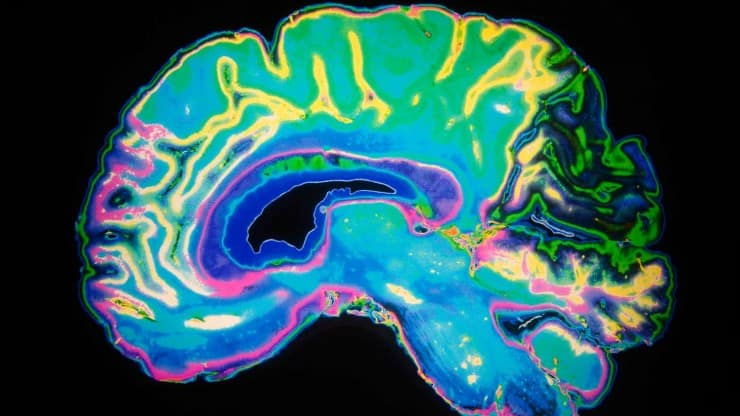 Sixty and Me_Afraid-of-Alzheimer's-Disease