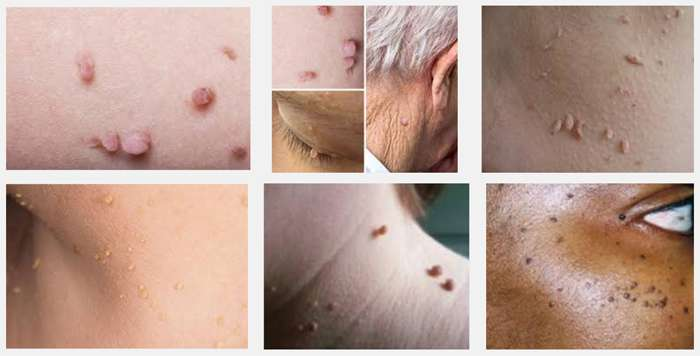 3 Tips for Managing Skin Tags as You Get a Little Older