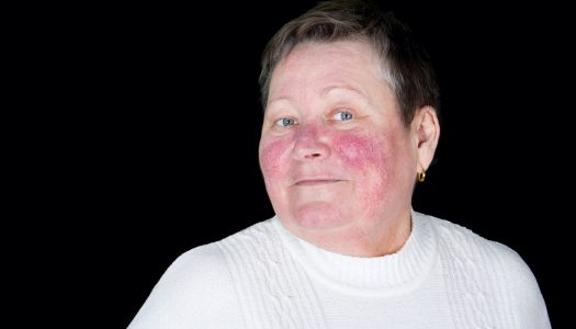Super Easy Pro Makeup Over 50 Tips For Concealing Age Spots And Rosacea